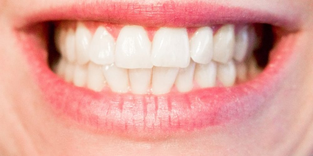 TMD can be treated with oral appliance therapy